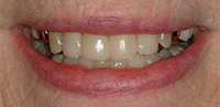 Palo Alto Dr. Hansen After Tooth Colored Fillings Close Spaces