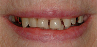 Palo Alto Dr. Hansen Before Tooth Colored Fillings Close Spaces