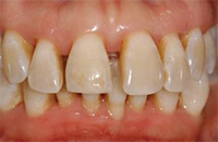 Palo Alto Dr. Hansen After-Non-Surgical-Periodontal-Therapy