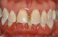 Palo Alto Dr. Hansen Before-Non-Surgical-Periodontal-Therapy